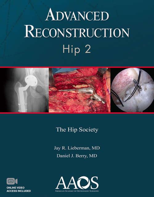 Advanced Reconstruction: Hip 2