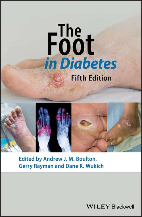 The Foot in Diabetes (Practical Diabetes)
