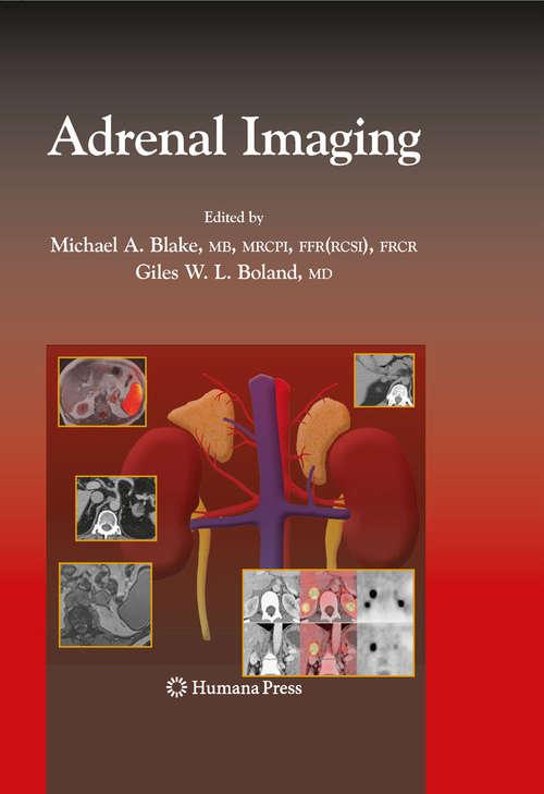 Adrenal Imaging (Contemporary Medical Imaging)