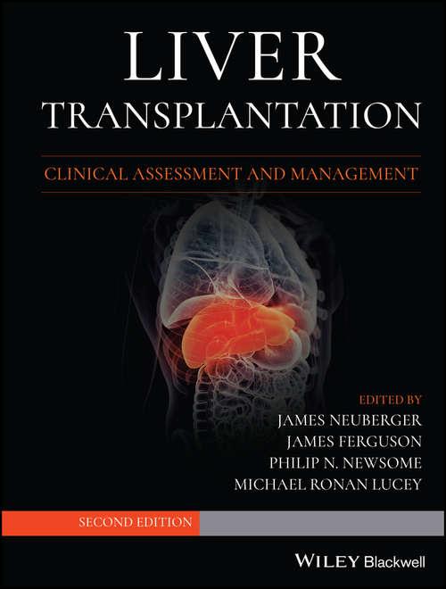 Liver Transplantation: Clinical Assessment and Management