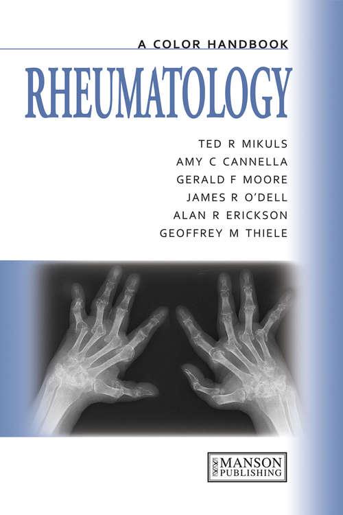 Rheumatology: A Color Handbook (Medical Color Handbook Ser.)