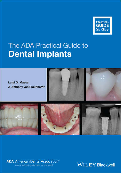 The ADA Practical Guide to Dental Implants (ADA Practical Guide)