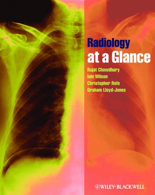 Radiology at a Glance (At A Glance Ser.)