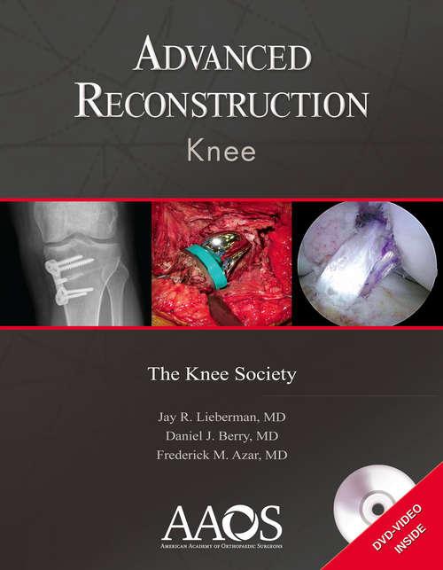 Advanced Reconstruction: Knee (Advanced Reconstruction Ser.)