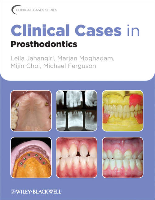 Clinical Cases in Prosthodontics (Clinical Cases (Dentistry) #9)